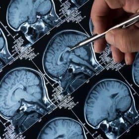 epilepsy scan